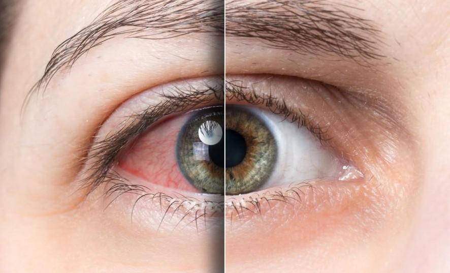 خشکی چشم و برطرف کردن آن - یک سندرم مزمن و معمولا پیش رونده است. بسته به علت و شدت ممکن است به طور کامل قابل درمان نباشد اگر چه در اقلب افراد درمان می تواند به صورت قابل توجه ای به احساس راحتی بیمار، کاهش علایم خشکی چشم و بعضی اوقات دید واضح تر کمک کند. به علت اینکه خشکی چشم می تواند علت های مختلفی داشته باشه درمان های مختلفی پیشنهاد می شود. در ادمه مطلب لیستی از رایج ترین درمان ها برای کاهش علایم خشکی چشم اورده شده است. متخصص بیمایی بسته به علت خشکی چشم شما ممکن است یک یا بیشتر از روش های زیر را به شما پیشنهاد کند. همچنین قبل از شروع درمان بعضی از متخصصین ممکن است از شما بخواهند که یک پرسشنامه را تکمیل کنید. این پرسشنامه به عنوان خط پایه برای درمان شما در نظر گرفته می شود و درمان گر می تواند با تکرار این پرسشنامه موثر بودن روش درمانی شما را ارزیابی کند. موفق بودن درمان رابطه مستقیمی با دنبال کردن روش های درمانی پیشنهادی، استفاده کردن از محصولات و همچنین رعایت زمان استفاده از محصولات درمانی می باشد. اشک مصنوعی برای حالت های متوسط خشکی چشم که معمولا به واسطه استفاده از کامپیوتر، مطالعه، فعالیت درسی و موارد دیگر موقعیتی ایجاد شده است بهترین درمان استفاده متناوب از اشک های مصنوعی یا انواع دیگر لوبریکانت های چشمی می باشد. اشک مصنوعی و لوبریکانت های دیگر چشمی بسته به ضرورت متنوع با ترکیب های مختلف به صورت او تی سی در داروخانه ها موجود است. اشک مصنوعی های با ویسوکوزیتی پایین ابکی هستند. این قطرات به شما کمک می کنند خیلی سریع چشمانتان را ارام کنید در عین حال که دید چشمانتان را تار نمی کند.البته به خاطر ویسکوزیتی پایین ممکن است احساس کنید اثر بخشی کمتری دارد و بهد از زمان کوتاهی نیاز به استفاده مجدد دارید. در عین حال اشک های مصنوعی با ویسکوزیتی بالا بیشتر حالت ژل دارند و میتوانند برای شما اثر بخشی بیشتری داشته باشند.اما معمولا این قطره ها یاعث تاری دید محصوص برای چند دقیقه می شوند. به همین خاطر این قطره ها برای استفاده در روز کاری یا مواقعی که به دید شفاف نیاز دارید مثل رانندگی مناسب نمی باشند. در عین حال این قطرات بیشتر برای موقع خوب مناسب هستند. همچنین با توجه به فرمول برای بعضی از انواع اشک های مصنوعی مشخص شده است که برای چه نوع خشکی چشم مناسب است. اگر معاجه گر شما نوع خ