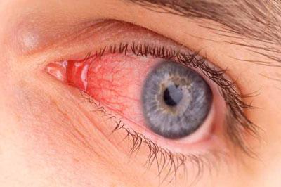 عفونت چشم1